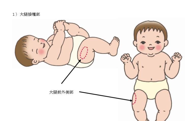 赤ちゃん 予防 接種